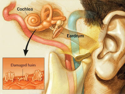 The cochlea in the ear, with damaged hair cells.