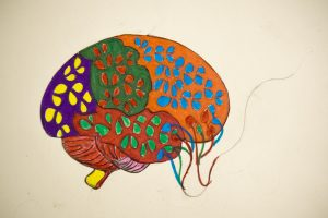 One of the first pieces of artwork Shawn made after getting out of surgery was this interpretation of his brain.